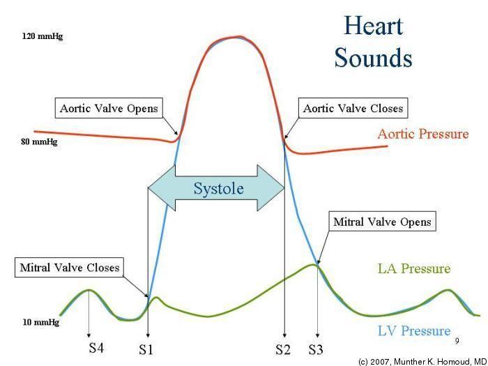 Heart sounds description nursing nursing school pinterest heart sounds description ccuart Choice Image