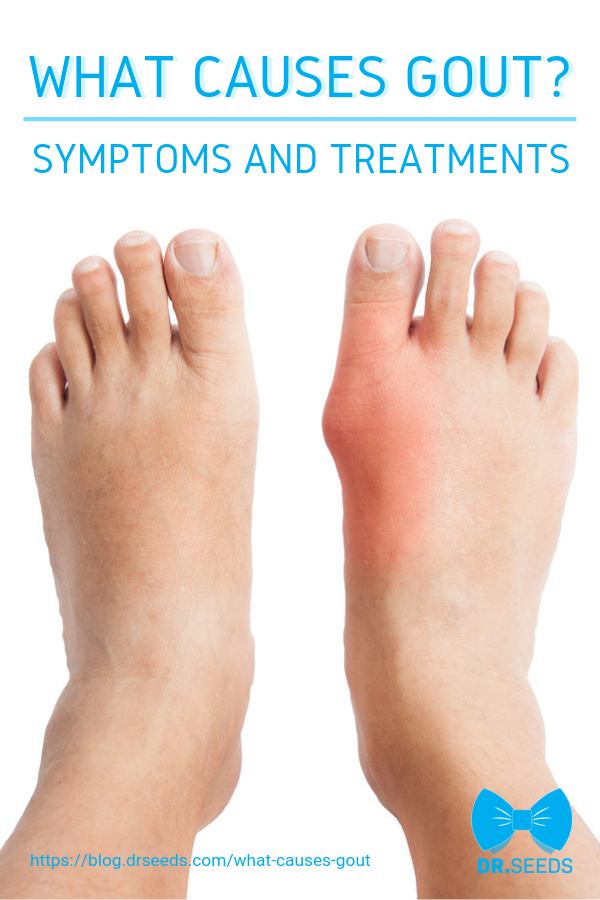What Causes Gout? | Symptoms And Treatments | Gout is a type of inflammatory…