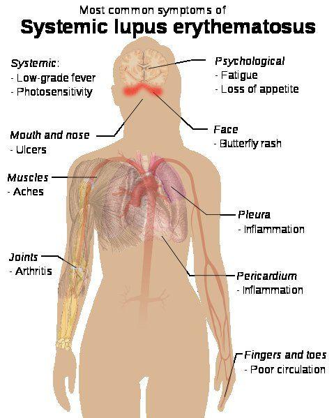 Pin On Medicine And Nursing