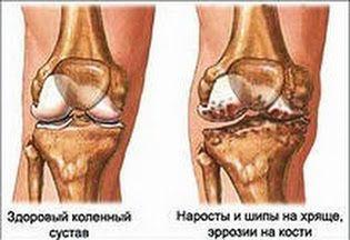 Артроз коленного сустава лечение препараты это