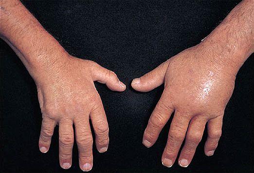 Sudden Pain In Ring Finger Joint