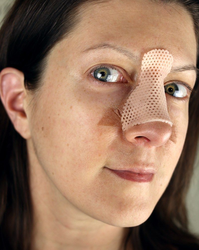 Top 12 Tips for Nose Surgery Recovery Nose surgery