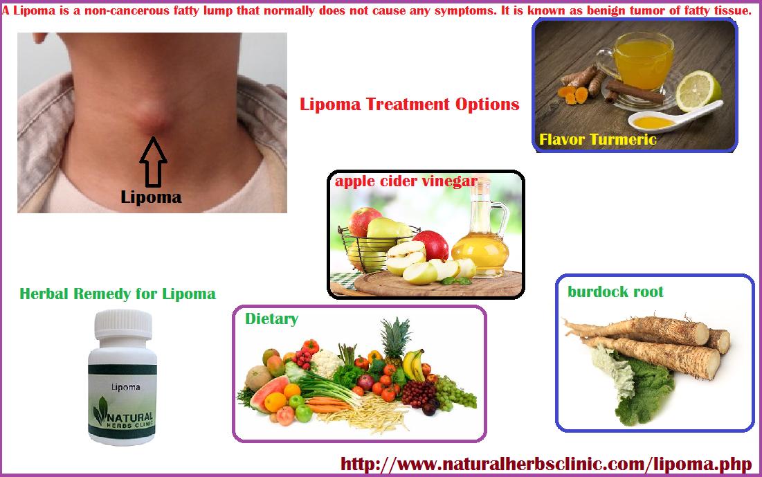 Pin by Jesucita Soria on Health & Beauty   Rheumatoid arthritis diet