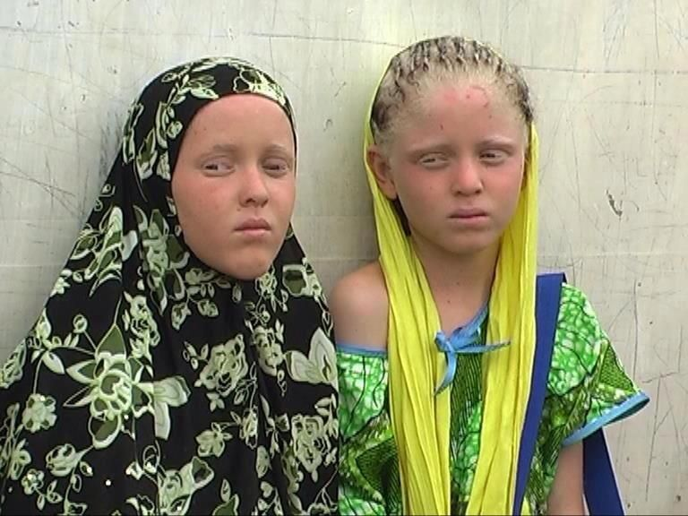 east African albinos- | Albinism, Human, Person with albinism