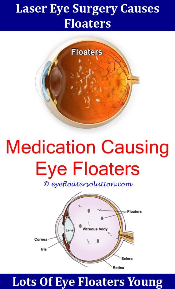 Does Lasik Fix Eye Floaters,eye Floaters Vitamin Deficiency Eye Floaters  Flashes Of Light Or Halos Around Lights.Eye Strain Symptoms Floaters Any Nu2026  ...