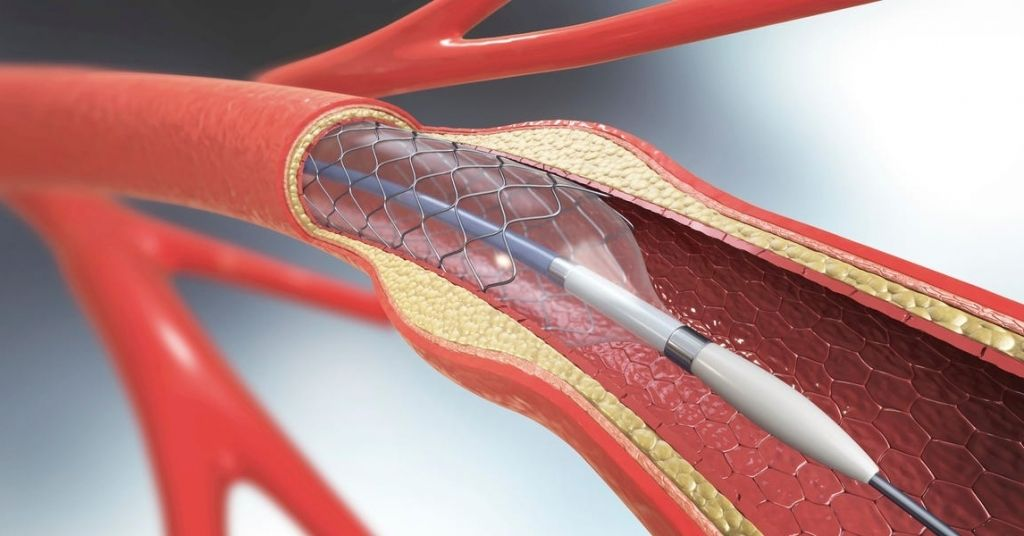 What is a stent? When you need one and when you don't