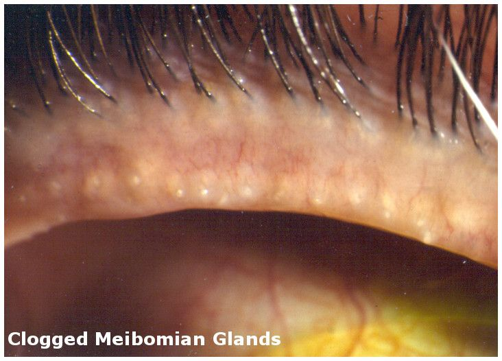 Meibomian gland dysfunction (MGD) is thought to be the