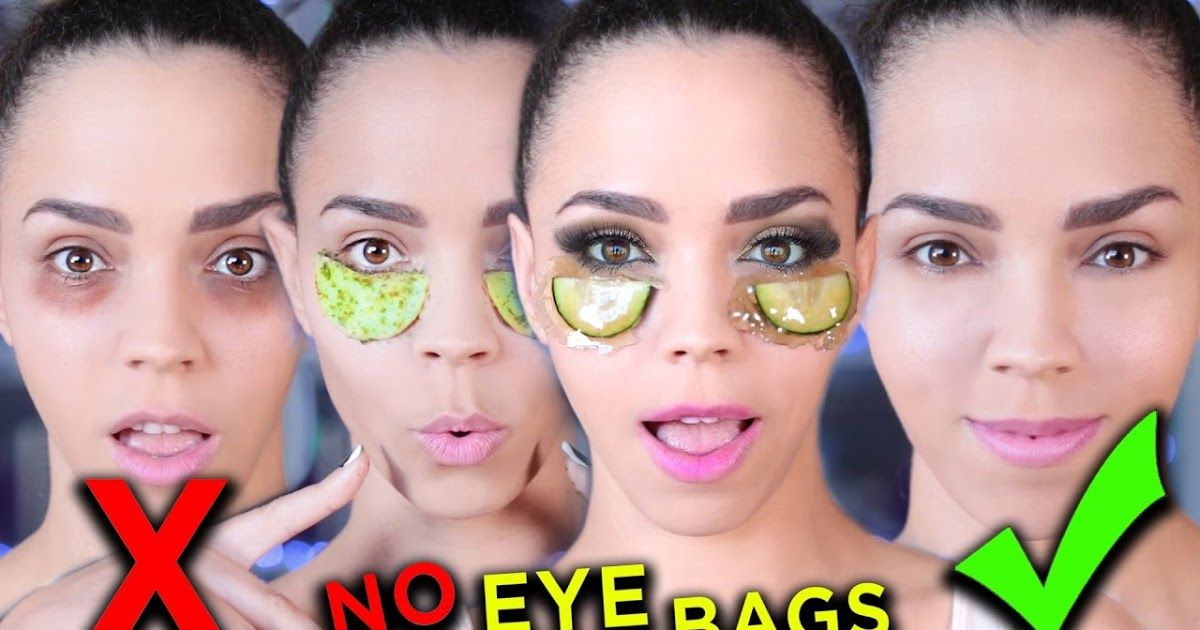 df7181119e2cc31bac2fea950ba69a8e - How To Get Rid Of Bags Under Eyes Naturally Fast