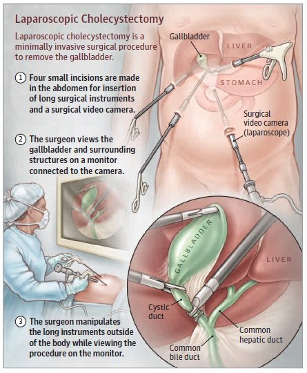 Cholecystectomy Gall Bladder Removal In This Week S Jama Patient Page We Discuss Laparoscopic Surgical Nursing Laparoscopic Surgery Gallbladder Surgery