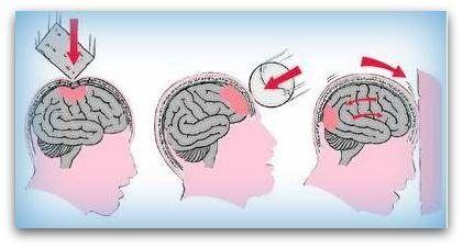 Hersenletsel door ongeval /Traumatisch hersenletsel. En dan te bedenken dat het op 4 plaatsen was... Hersenletsel-uitleg.nl