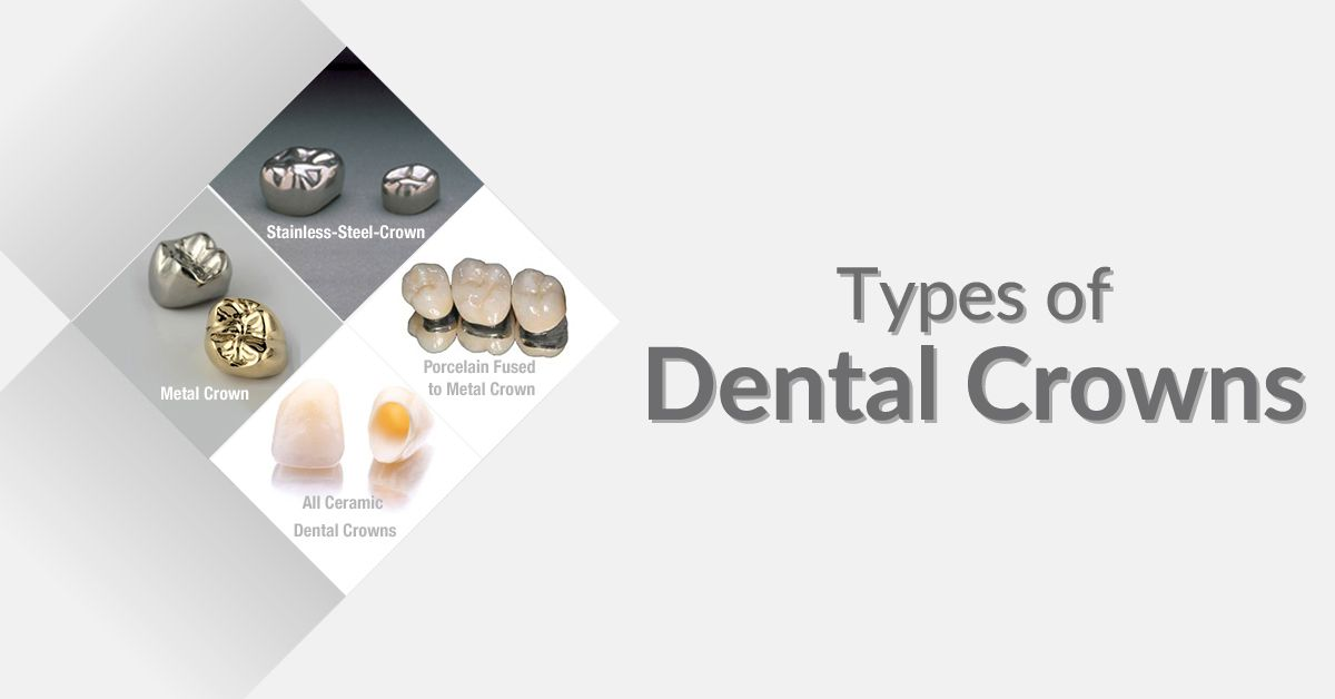Types Of Dentalcrowns Stainless Steel Crowns Metallic Crowns Porcelain Crowns Ceramic Crowns Dental Crowns Dental Implants Cost Dental Services