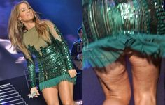 De Jennifer LopezBotín CelulitisFamosos Celulitis Fotos La dBCQoWErxe