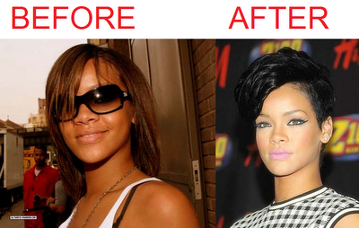 Rihanna Skin Bleaching Before And After Skinbleachingupperlip