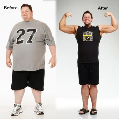 How much does synergy weight loss cost photo 6
