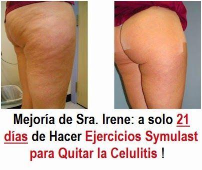 con que ejercicios se quita la celulitis