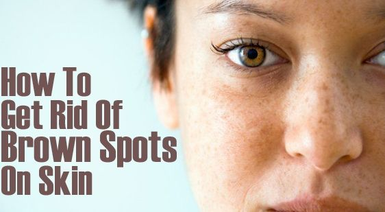 How to get rid of sun spots on face naturally