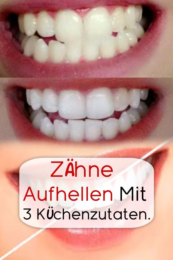 Zähne aufhellen mit 3 Küchenzutaten. #Gesundheit #Heilmittel #Schönheit #tipp…
