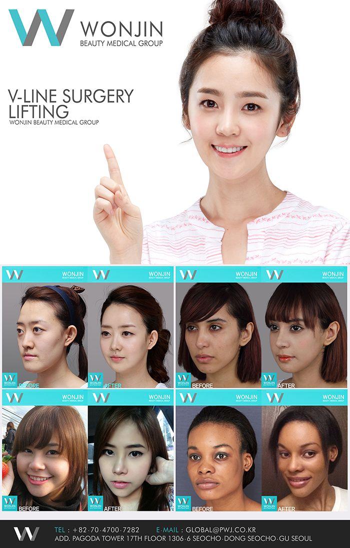 Wonjin Beauty Medical Group In Korea Wonjinbeauty Wonjin Wonjinplasticsurgery Plasticsurgery Beauty Dou Plastic Surgery Best Plastic Surgeons Eye Surgery