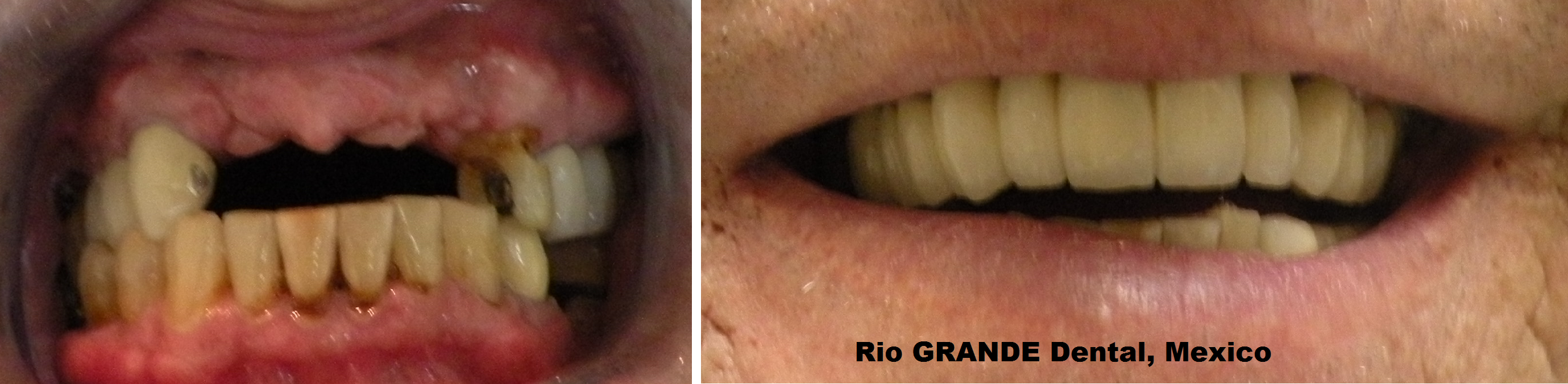 Affordable Snap on Dentures Call Our Juarez Mexico ...