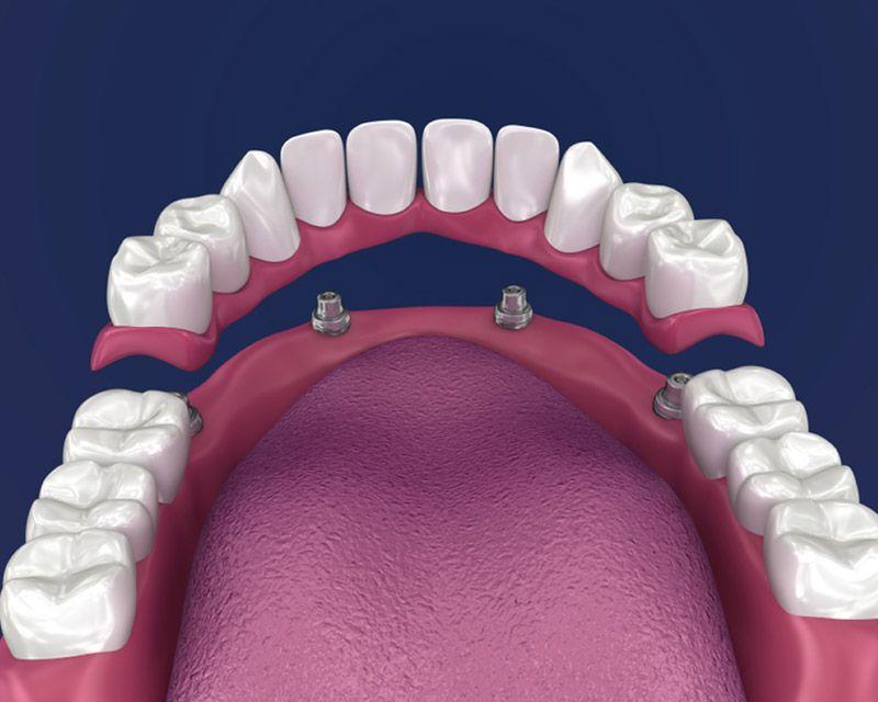 Dental Implants in Palm Beach Gardens Dental Implants