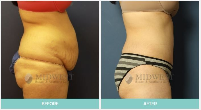 Pin On Tummy Tuck Before And After Photos