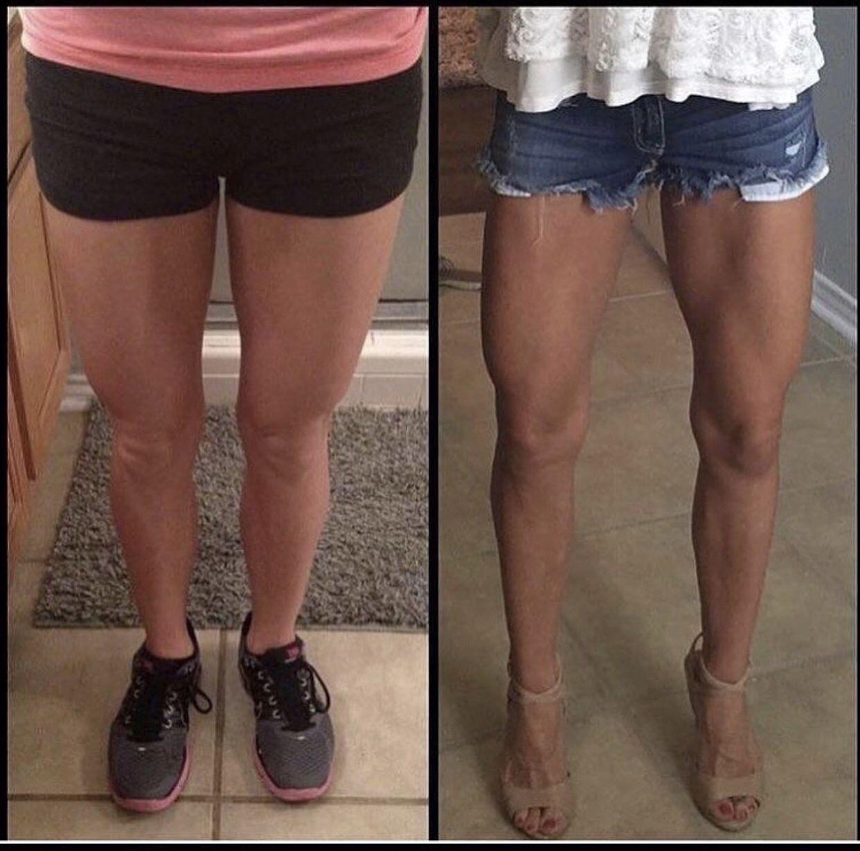 Ноги Похудели Икры Ног. Как уменьшить икры ног