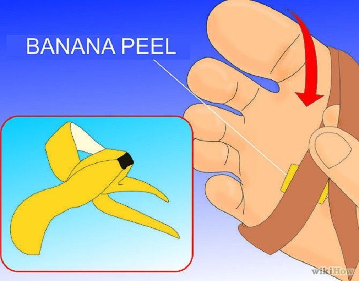 Warts on hands banana peel. Warts on hands banana peel