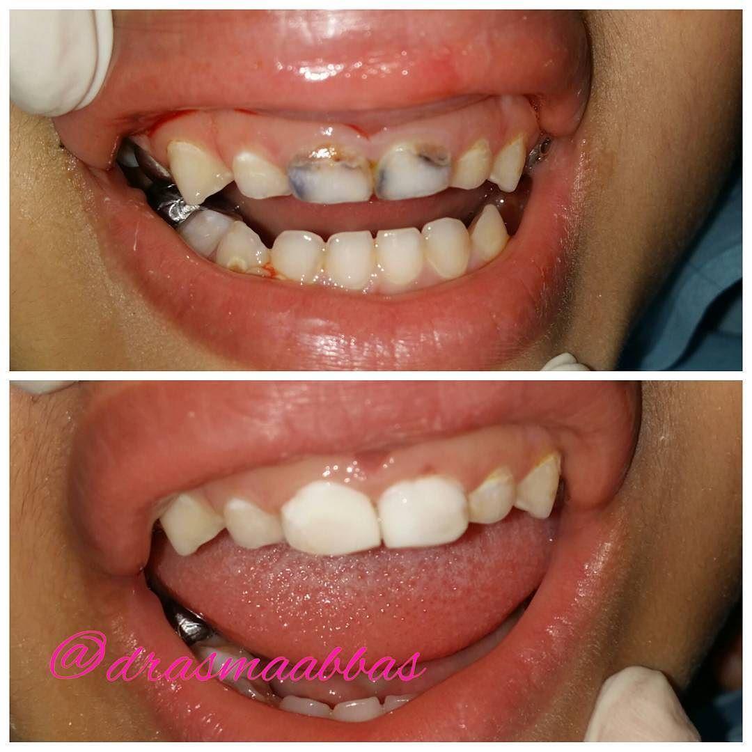 Dr Asmaa M Abbas On Instagram قبل وبعد علاج التسوس في الأسنان الامامية عند الأطفال فوائد المحافظة علي الاسنان اللبن Dentistry General Dentistry Oral Health