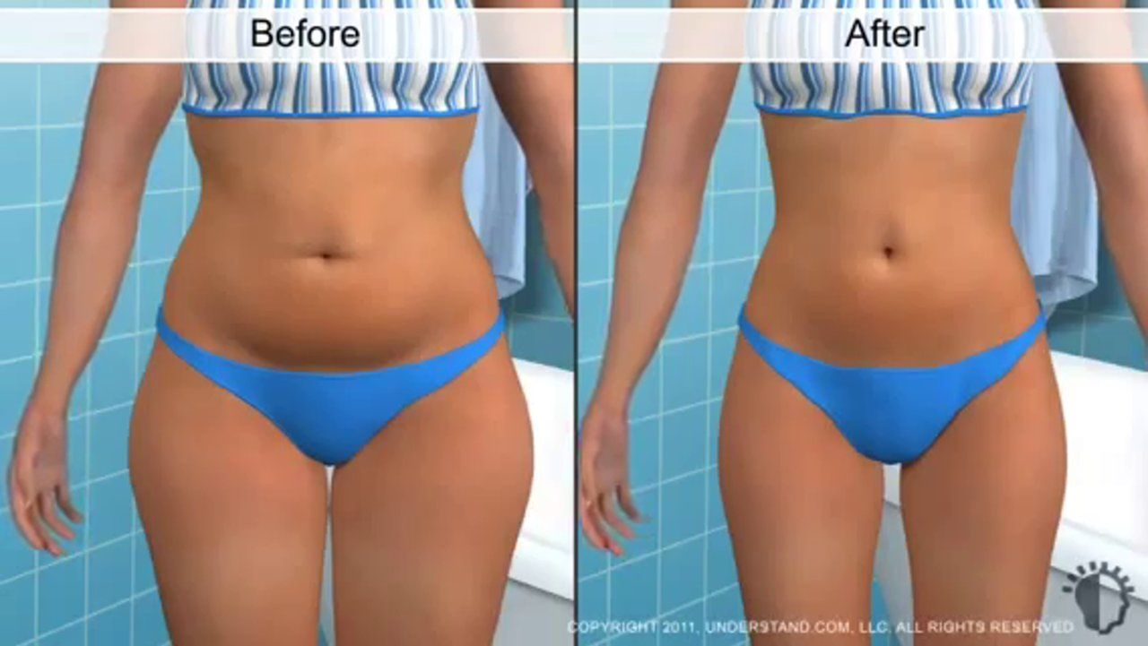 Getting rid of extra pounds: liposuction at home