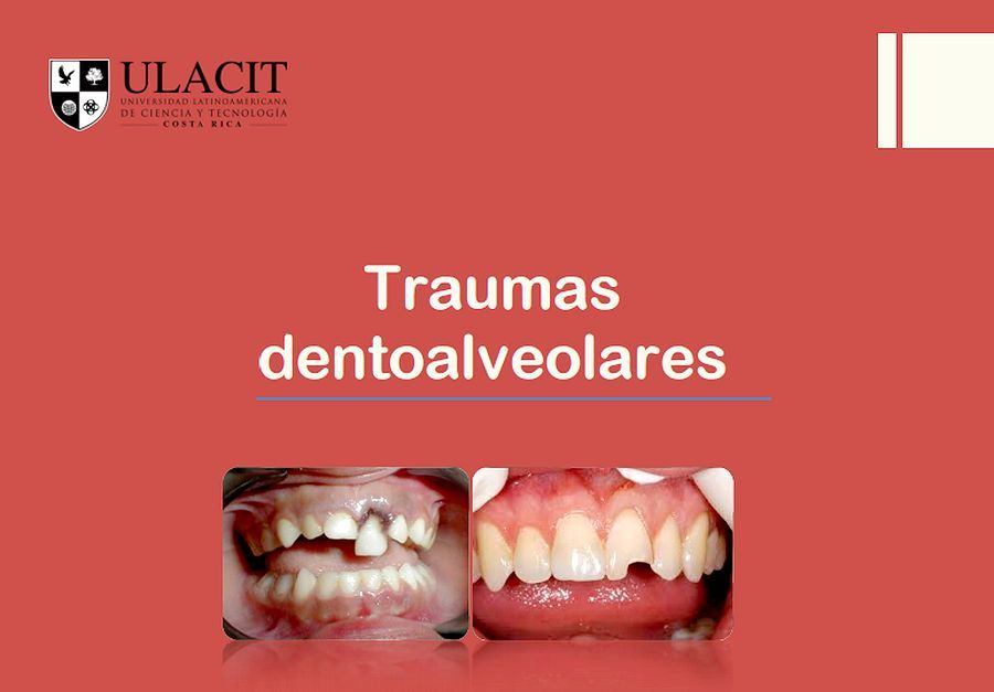 traumatismos-dentoalveolares