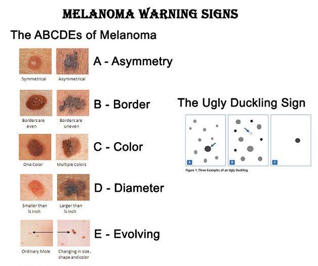 Skin Dermatologists: Moles & Skin Bumps   useful tips   Pinterest ...
