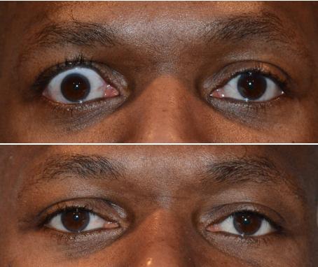 Thyroid Eye Disease Is One Of The Most Devastating Ocular Diseases