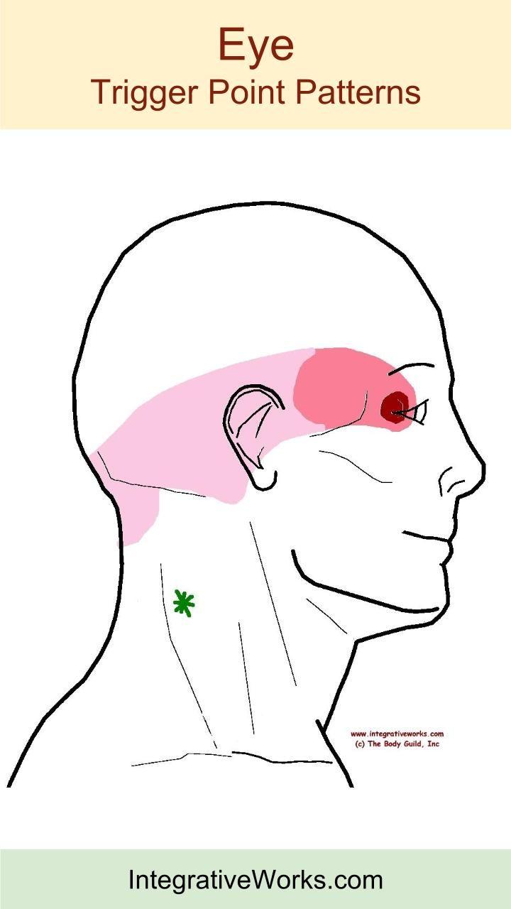 Understanding Trigger Points - Neck-ache Headache, Eye ...