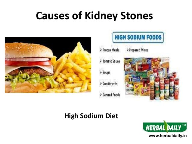 causes of kidney stones | cause,prevention & traetment of kidney, Human Body