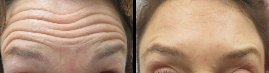Have you ever feel that the wrinkles are making you look older in age? Here is an effective treatments known as Botox! View the image and Visit Look Younger MD.