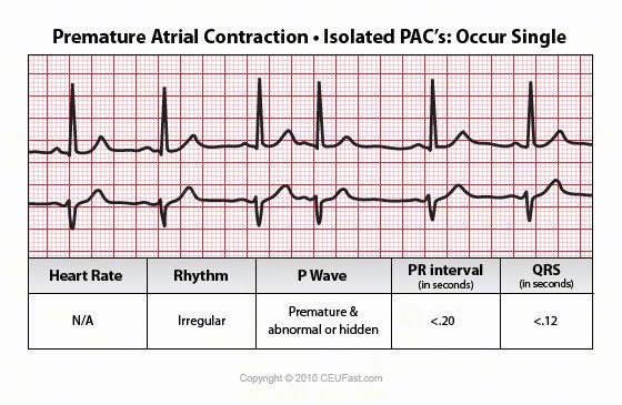 Premature Junctional Contraction P Wave premature atrial contr...