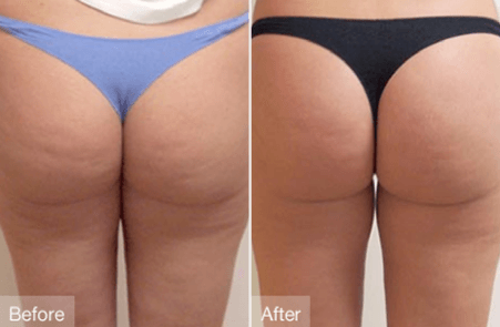 Best cellulite treatment doctors