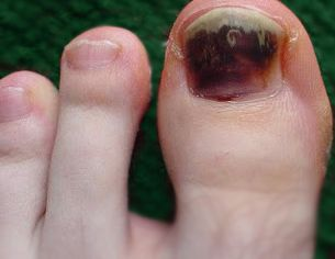 What Causes Black Toenail Fungus You can get more information about ...