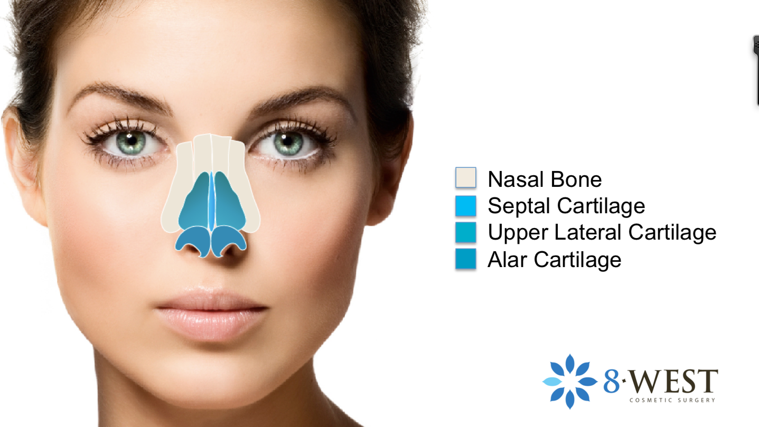 Nasal cartillages. Dr. Buonassisi explains the nasal anatomy in his ...