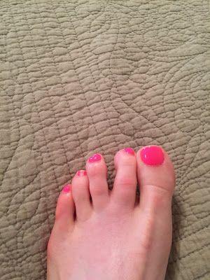 Drifting toe, floating toe syndrome, running injury, buddy taping