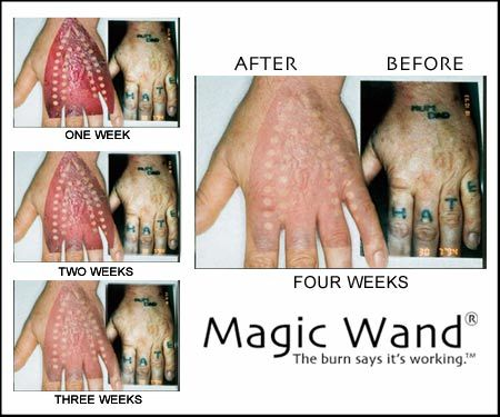 photos of Tattoo Removal Pa | PETS | Pinterest | Tattoo removal ...