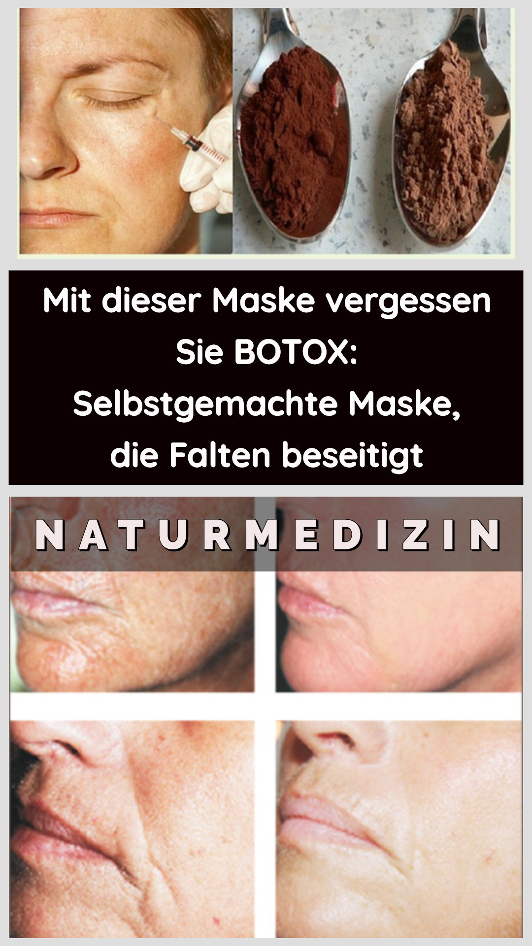 Photo of With this mask you forget BOTOX: self-made mask, …