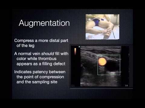 Dvt Ultrasound Ultrasound Ultrasound Sonography Vascular Ultrasound