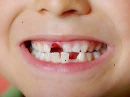 علاج مشاكل اسنانه الاطفال