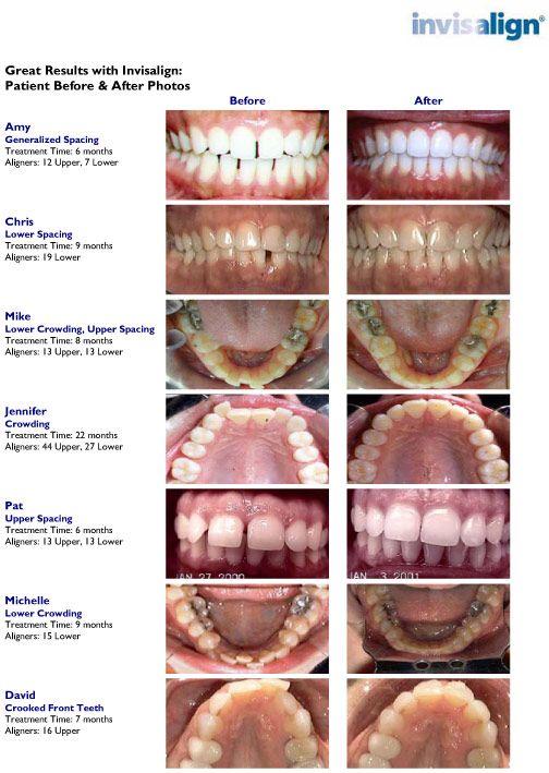 dfb8f050a95fca12dda9d017af323ced - Miami Gardens Dental Center Miami Gardens Fl