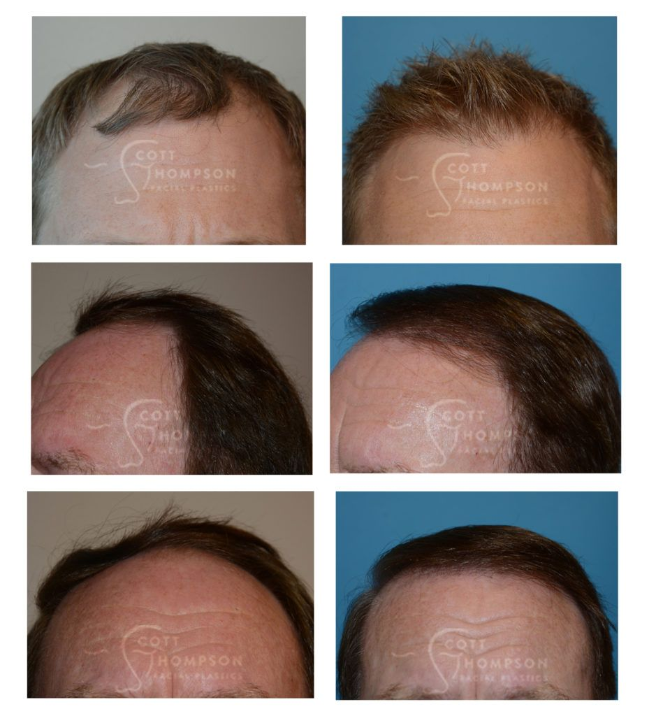 what does hair transplant surgery cost