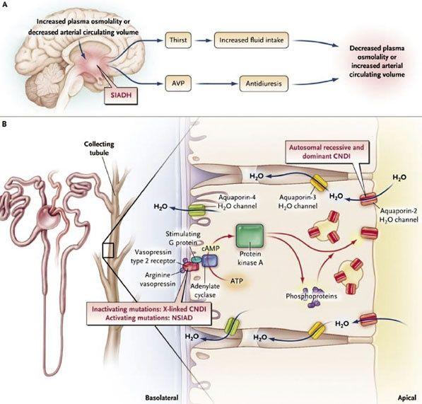 Congenital Nephrogenic Diabetes Insipidus Cndi Is X Linked Loss Of Function Mutation Of The Receptor Diabetes Insipidus Health Insurance Quote Kidney Biopsy