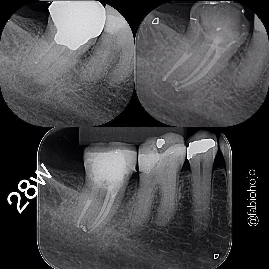 #endodontic#dentista #endodontia #endodontictreatment #endodontics #dentistry #durr #microsonics #microscope #dentist #endogroup #odontolove #canal #odontology #odonto #reciproc #vdw #rootcanaltreatment #rootcanal #rootcanals by fabiohojo Our General Dentistry Page: http://www.lagunavistadental.com/services/general-dentistry/ Google My Business: https://plus.google.com/LagunaVistaDentalElkGrove/about Our Yelp Page: http://www.yelp.com/biz/fenton-krystle-dds-laguna-vista-dental-elk-grove-3…