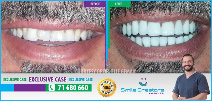 Congratulations Fady on your new Smile! Thank You Dr Elie