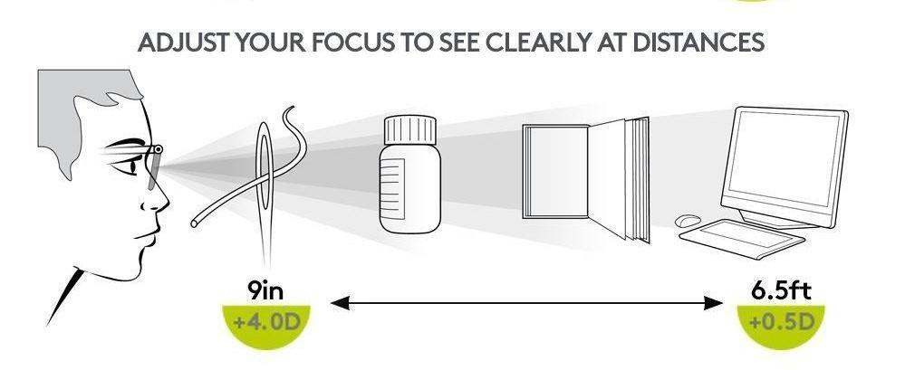 3 dioptriás myopia